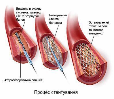 стентир